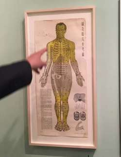 Nixson acupuncture Chart 1